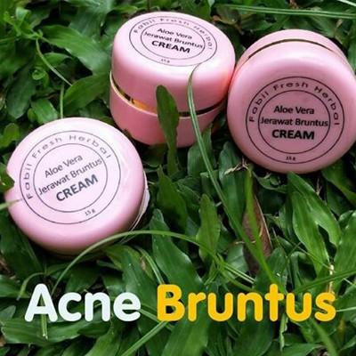 Aloe Vera Jerawat Bruntus Cream